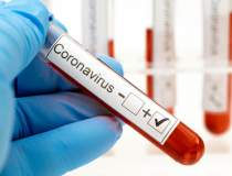 Coronavirus | Spania a...