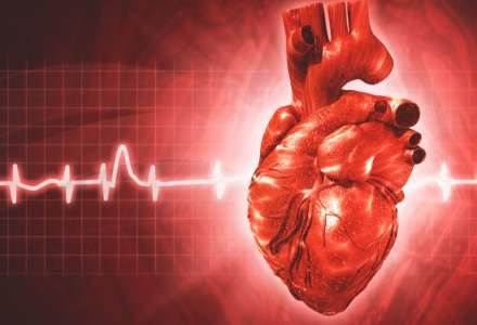 Bolile de inimă: cum ar putea statul să prevină zeci de mii de decese?