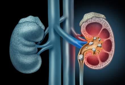 (P) Litotriția extracorporeală cu unde de șoc, o soluție implementată cu succes de peste 10 ani la GRAL Medical