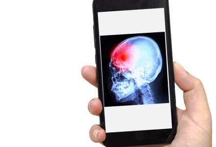 Peste 50.000 de români suferă, anual, un accident vascular cerebral (AVC)
