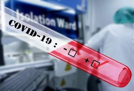 Testele rapide antigen SARS Cov-2 vor fi utlizate doar de către personalul medical