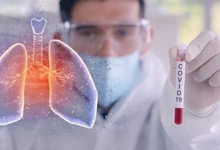 S-a lansat RestartiX Respirator, programul care te ajută să îți recapeți capacitatea respiratorie după ce ai fost infectat cu COVID-19