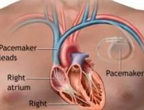 Inventie elvetiana: pacemaker...