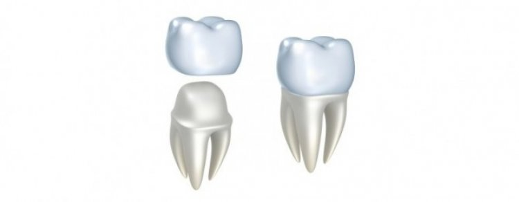 Cat de importanta este estetica dentara in viata oamenilor?