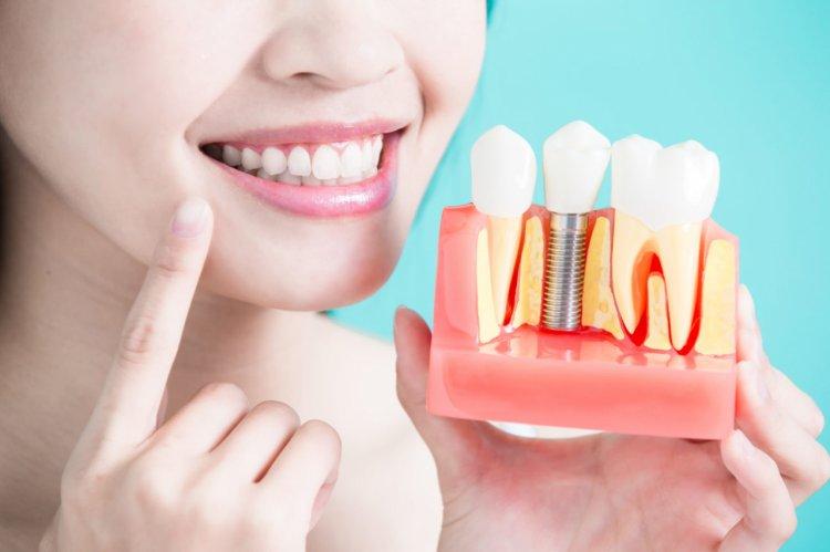 Unde poti beneficia de implant dentar in sectorul 4 de calitate premium?