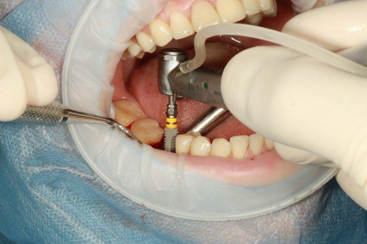 4 mituri despre implantul dentar