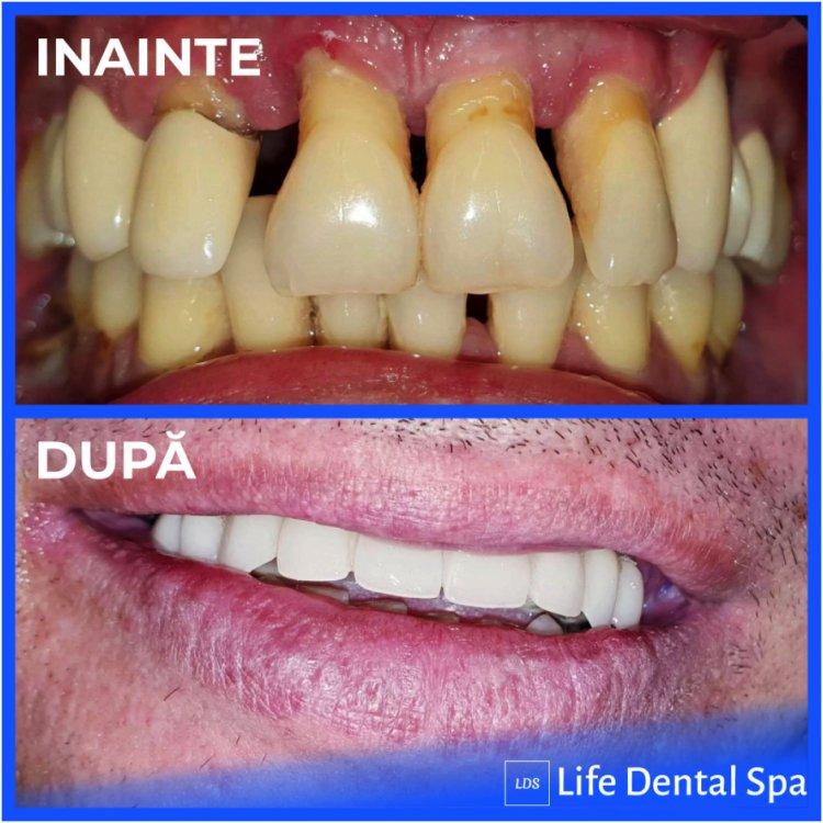 Dinti ficsi pe implanturi in doar 8 ore - Life Dental Spa