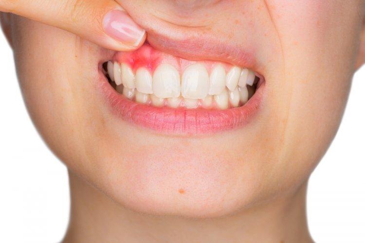 Care sunt tratamentele fiecărui stadiu al parodontitei?